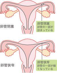 卵管閉塞.jpg